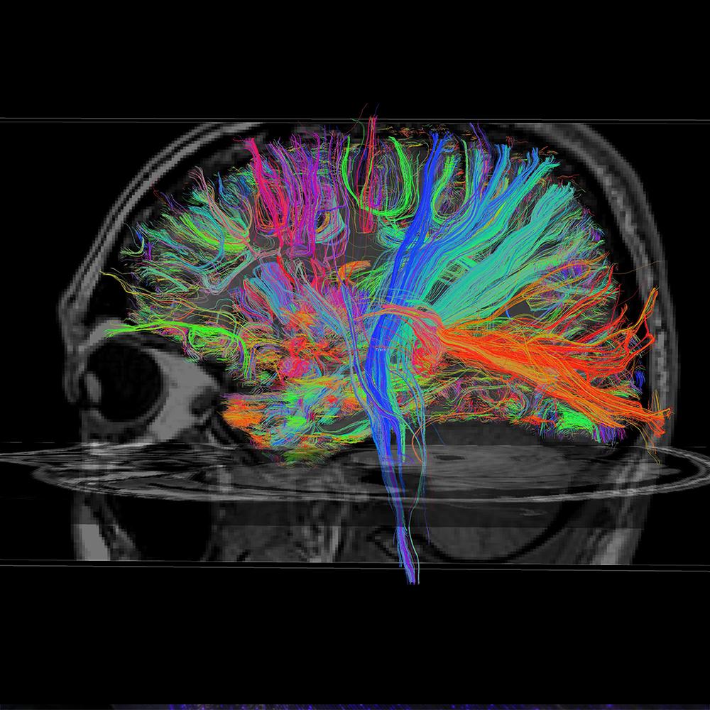 Ondřej Tomšů | Brain play project